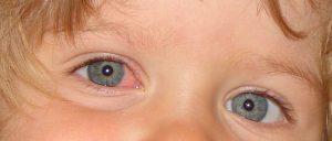 Bacterial pink eye