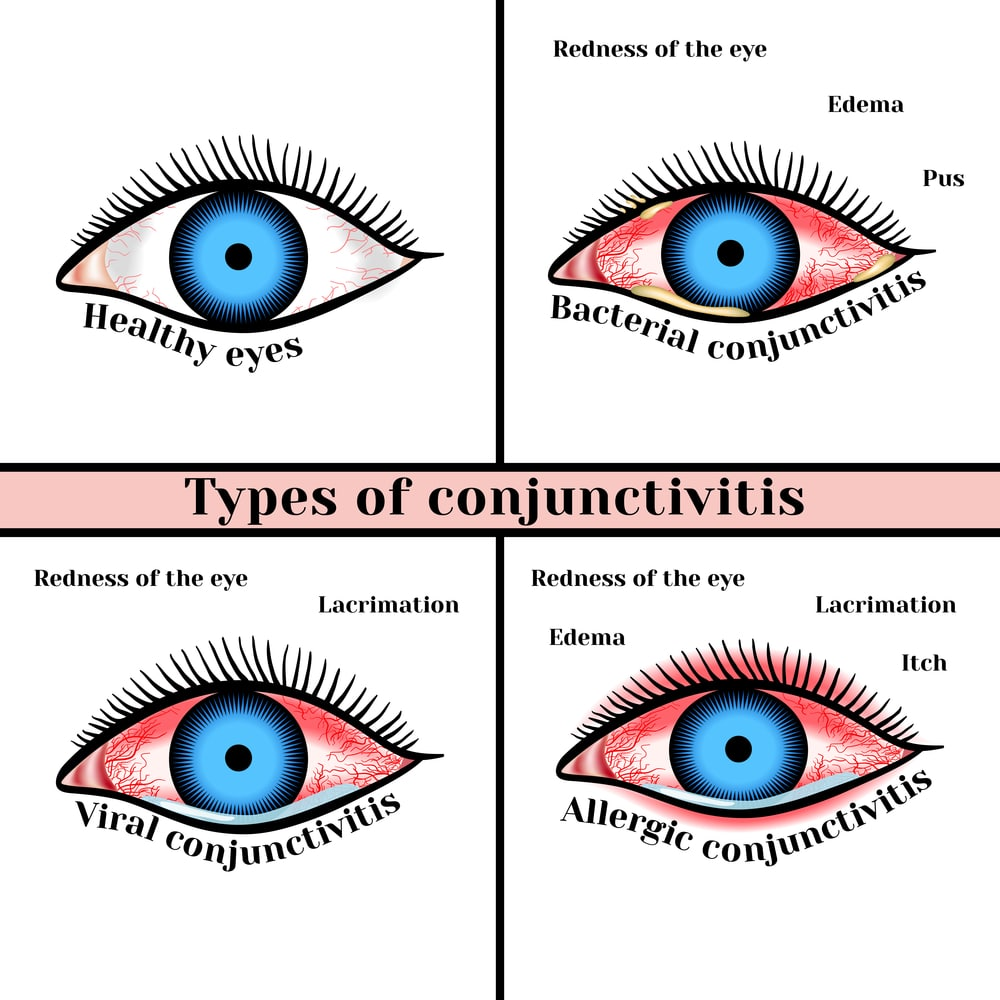 conjunctivitis treatment nj