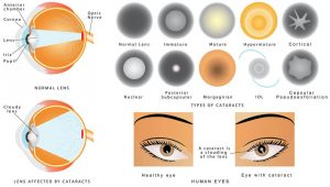 Cataract and its classifications