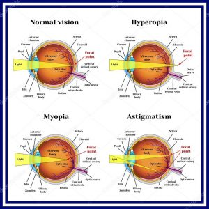 Refractive errors eyeball