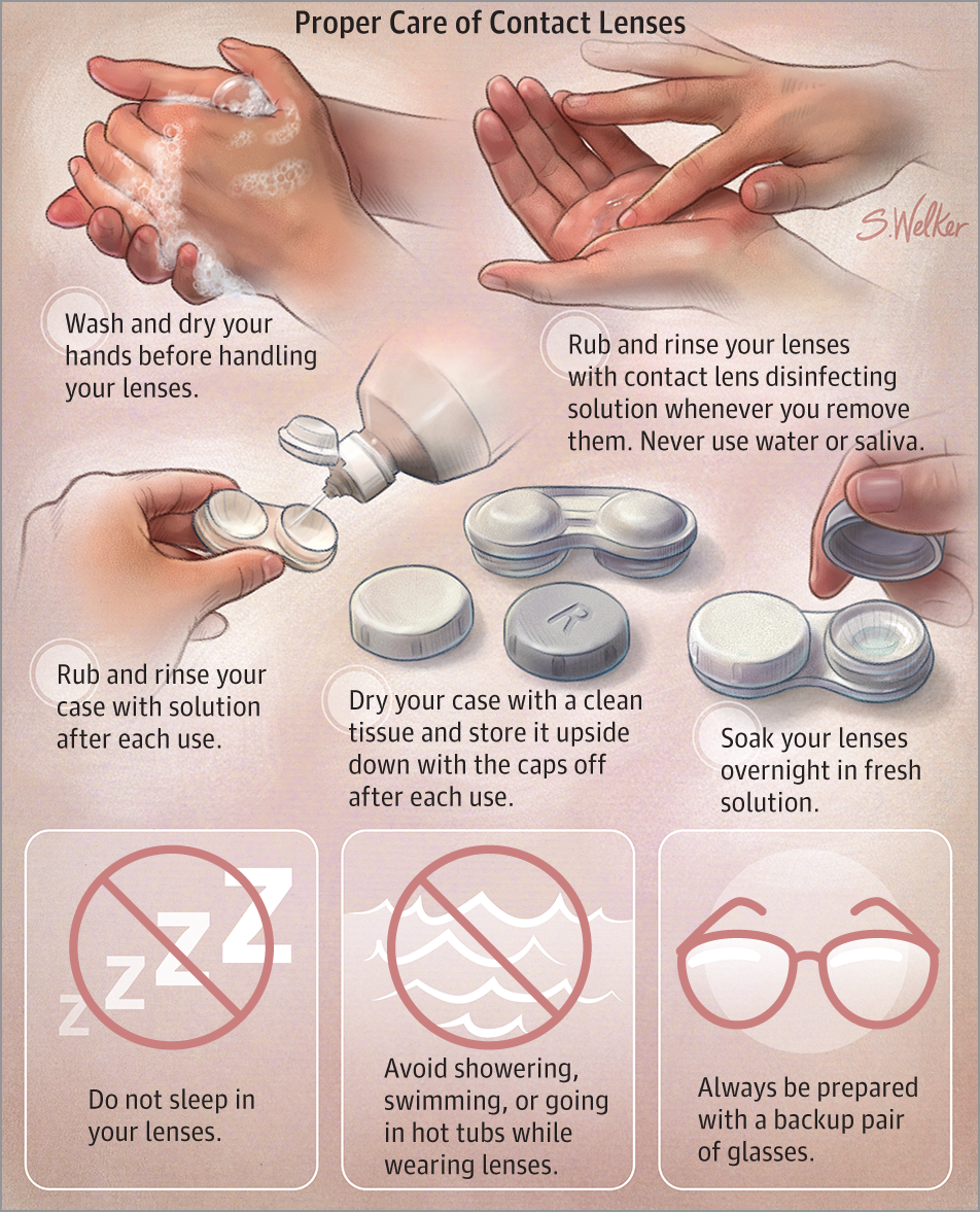 contact lens proper care
