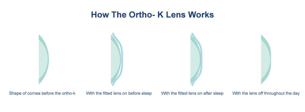 HOW ORTHO K WORKS