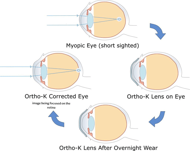 Corneal reshaping with Ortho-K lenses in overnight