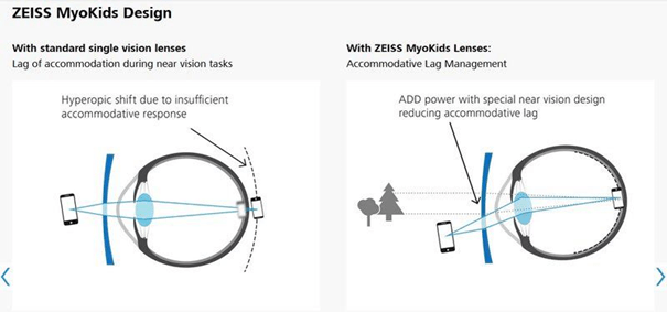 Difference between single vision lenses and Myokids lenses