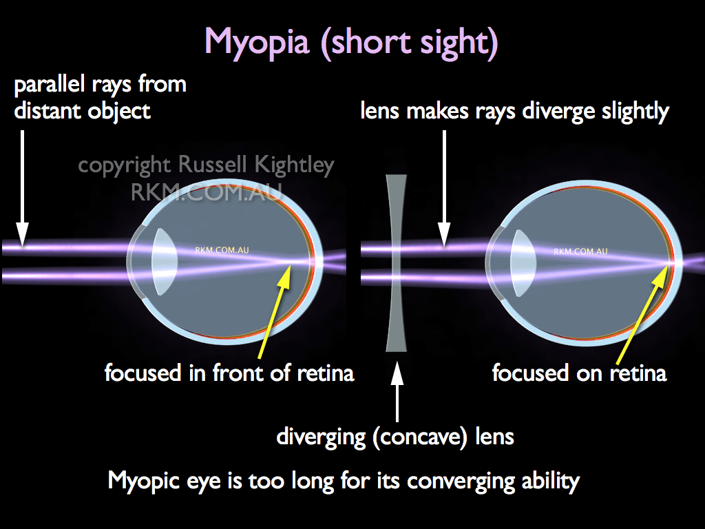 Eyes with short-sightedness