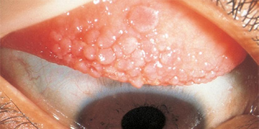 kesan allergi dari kanta lekap