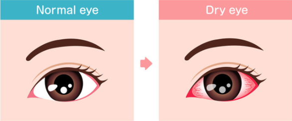 Normal Eye vs Dry Eye