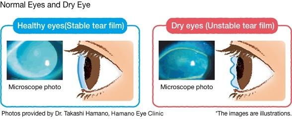 Normal eyes vs dry eyes