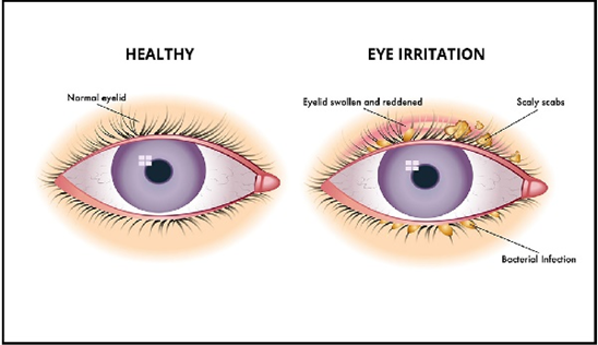 The differences of healthy eyes and irritation eyes (the effect of contact lens)