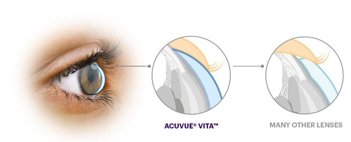 Acuvue Vita Astigmatism