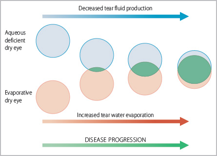 Evaporation and aqueous deficient dry eyes