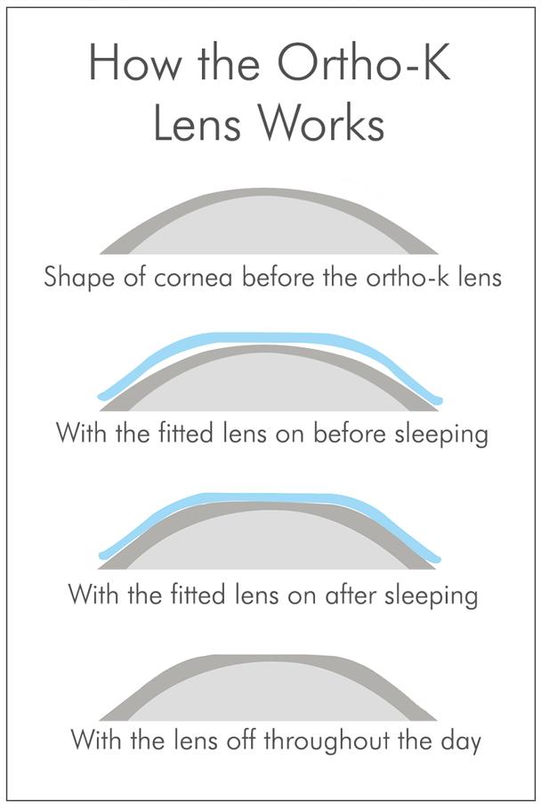 iSee Orthokeratology Contact Lens