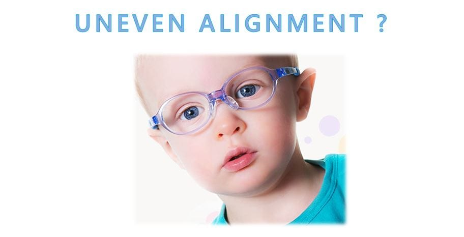Malaya-Optical-Uneven-Alignment