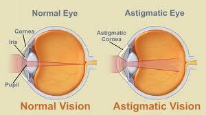 Prescription Glasses Astig