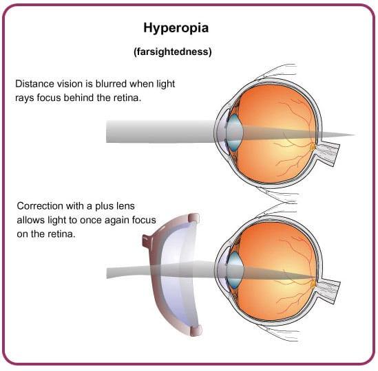 Prescription Glasses Hyperopia