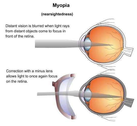 Prescription Glasses Myopia